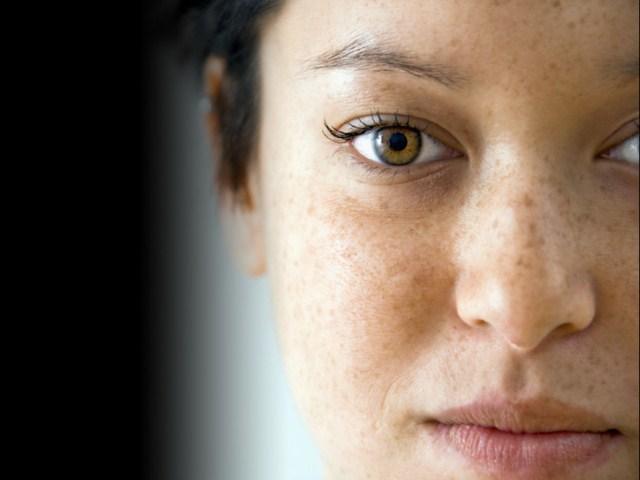 przebarwienia-na-twarzy