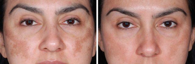 Dermapen-efekty-przebarwienia