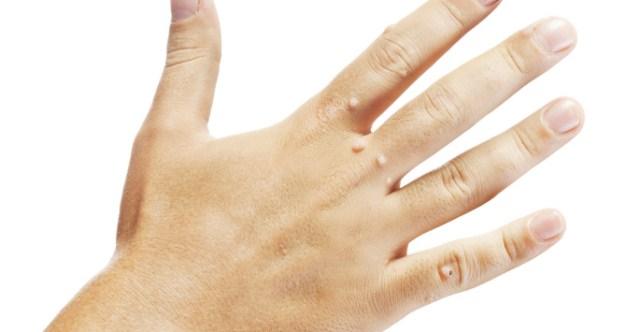 dłonie-kurzajki