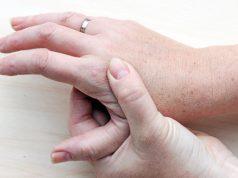 kurzajka-na-dłoniach-2