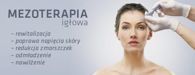 mezoterapia-iglowa