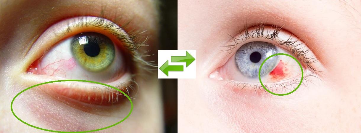 podraznione-od-platkow-oczy