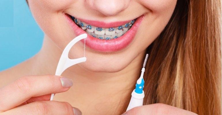 nic-dentystyczna-a-aparat-na-zebach